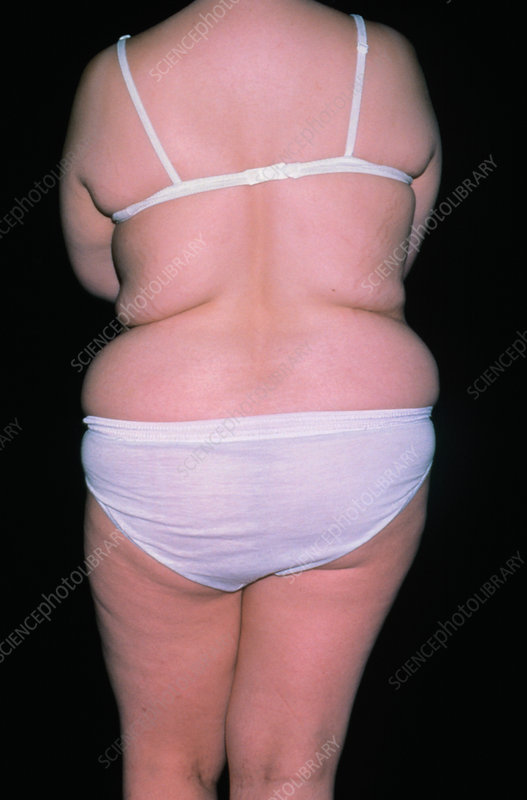 Rear view of obese woman