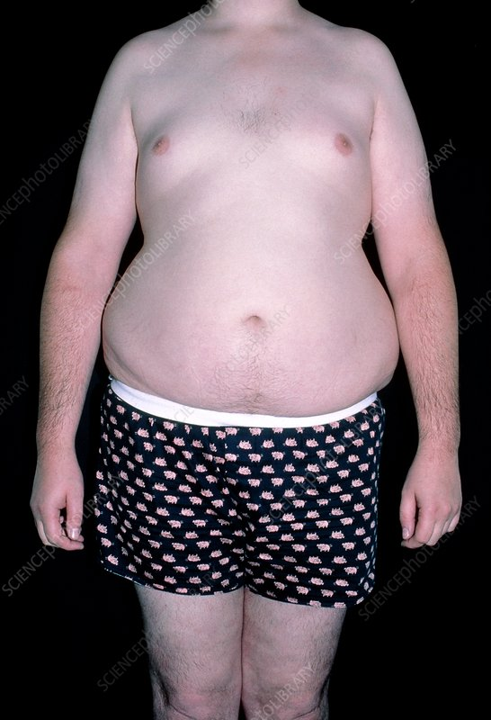 Front view of obese man