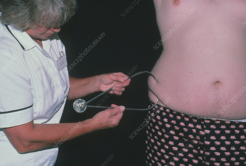 Fat measurement of obese man with callipers