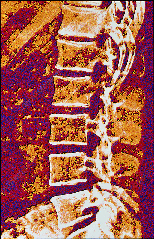 Coloured X-ray of vertebrae showing osteoporosis