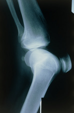 X-ray of knee showing osteochondritis dissecans