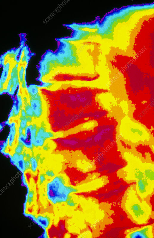 Coloured X-ray of osteoporosis of the spine