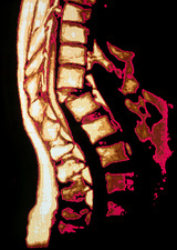 Colour MRI scan of crumbling spine in osteoporosis