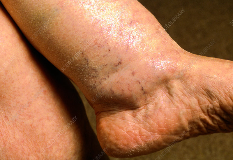 Close-up of ankle swelling (oedema) in a woman