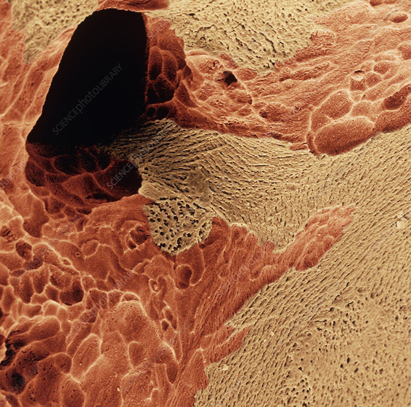 Coloured SEM of spongy bone in osteoporosis