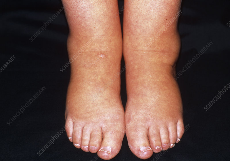 Ankle oedema showing swelling