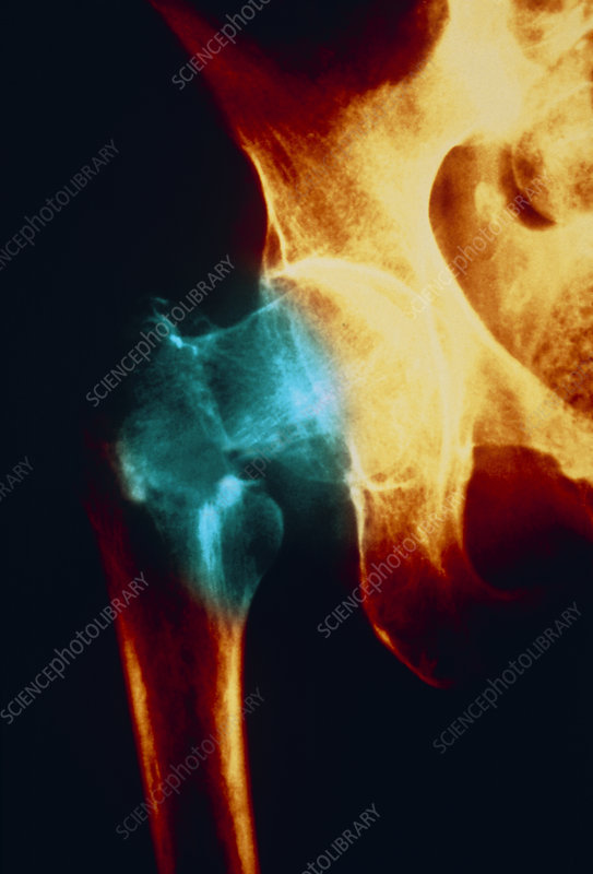 Coloured X-ray: femur fracture due to osteoporosis