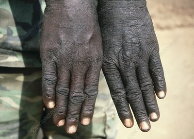 Dermatitis due to onchocerciasis