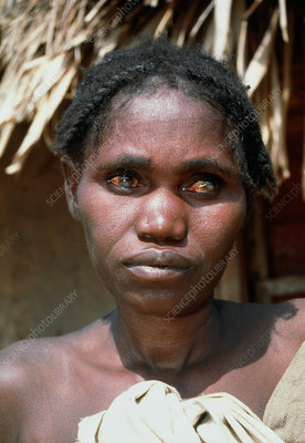 Woman with river blindness