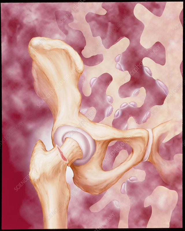 Artwork of a femur fracture due to osteoporosis