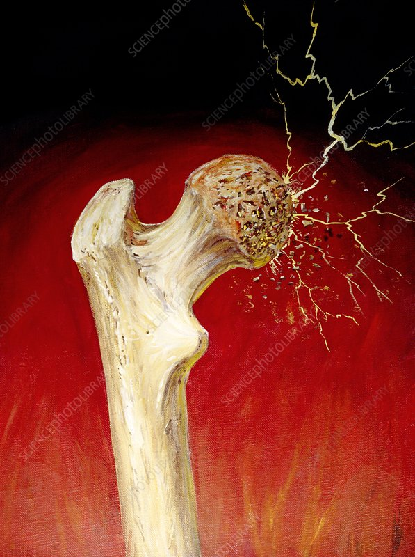 Artwork representing the damage of osteoporosis
