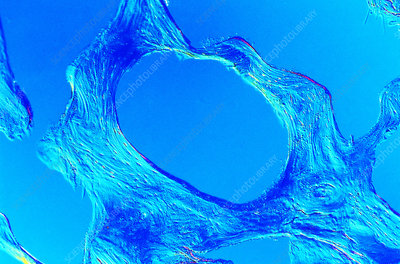 Light micrograph of compact bone with osteoporosis