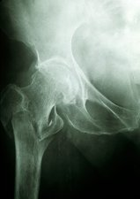 X-ray of a hip fracture due to osteoporosis