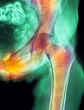 Coloured X-ray of hip fracture due to osteoporosis