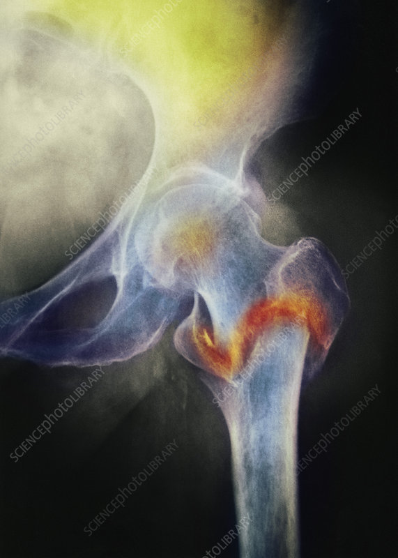 Coloured X-ray of femur fracture in osteo
