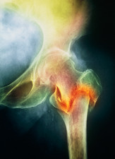 Coloured X-ray of femur fracture in osteoporosis