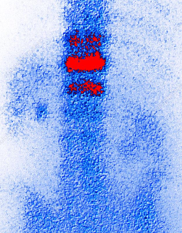 Coloured gamma scan of osteoporosis in vertebra