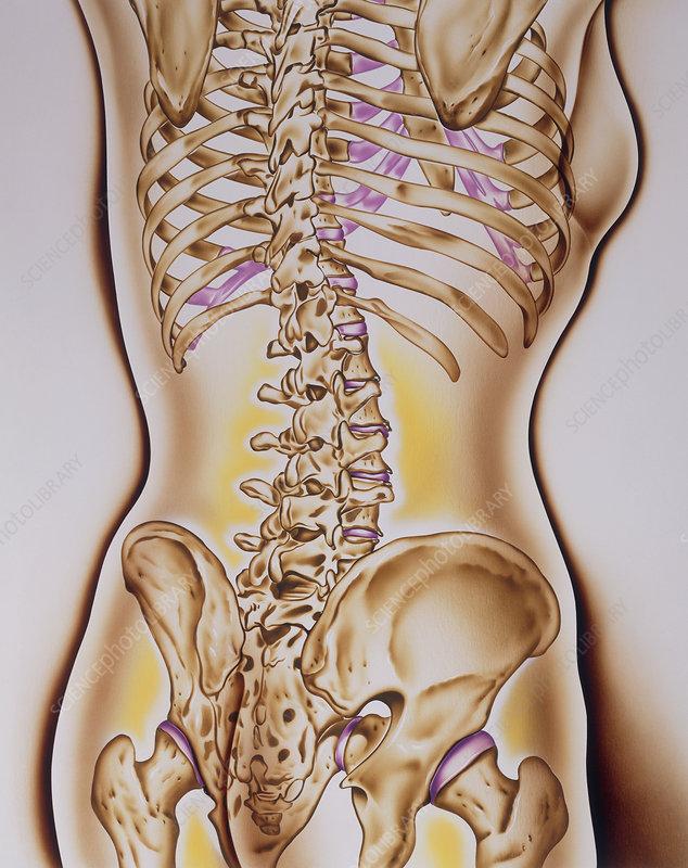 Artwork showing osteoporosis of woman's skeleton