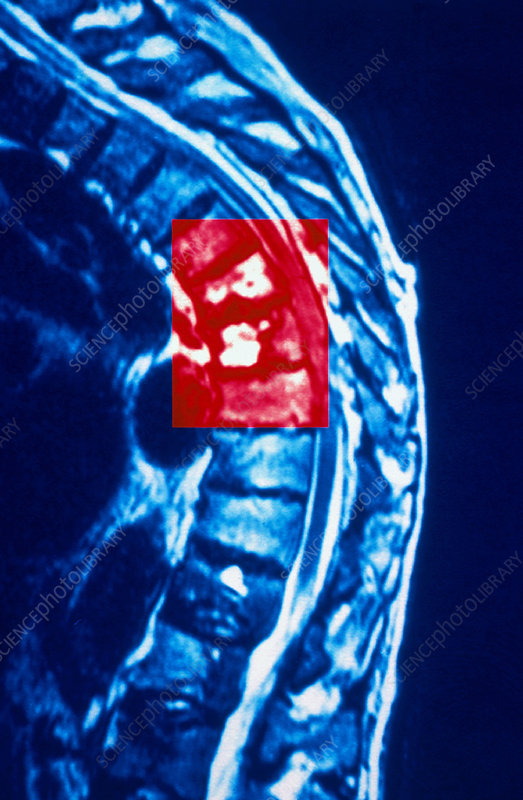 Bent spine MRI scan