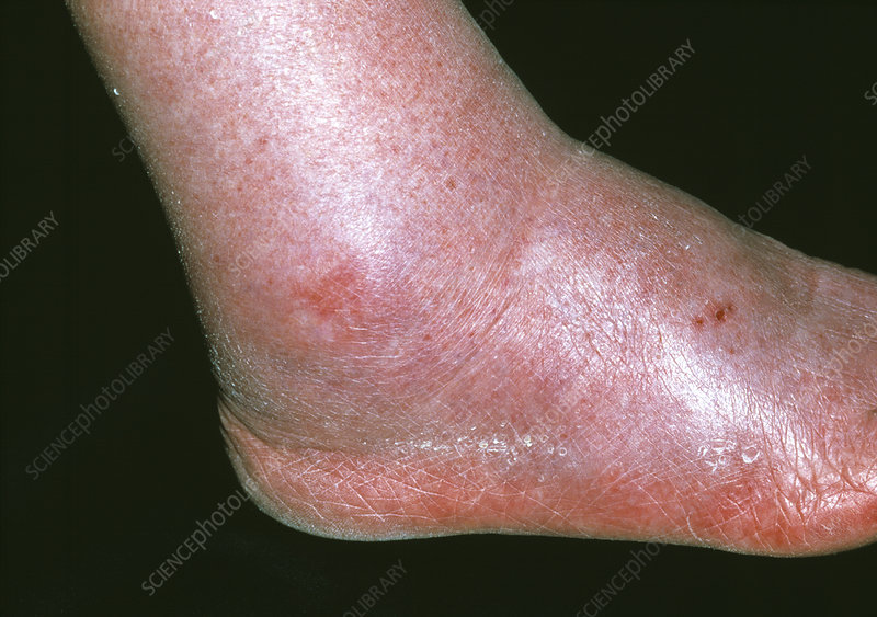 Swollen ankle due to oedema