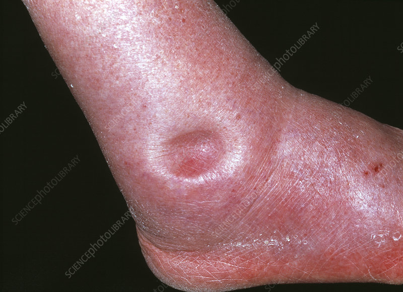 Oedema in the ankle