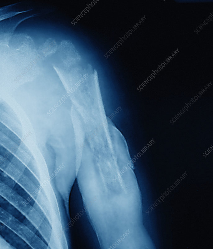 Bone infection, X-ray