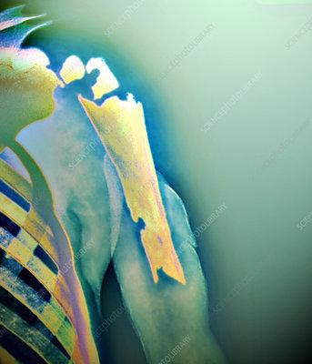 Bone infection, X-ray