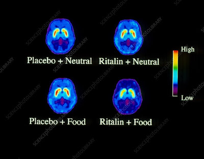 Food addiction brain research, PET scans
