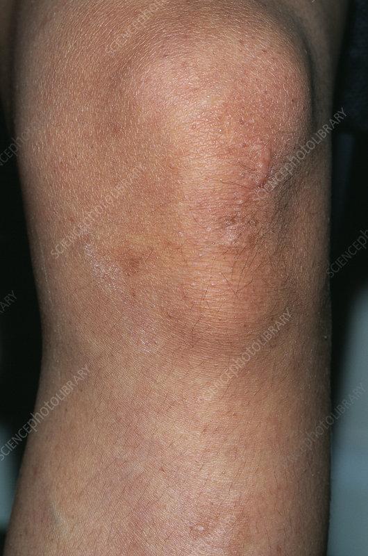 Osgood-Schlatter's disease