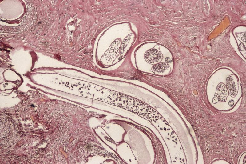 Onchocerca volvulus parasites
