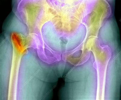 Fractured osteoporotic hip, X-ray