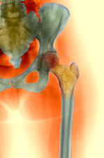 Osteoporosis of the hip, X-ray