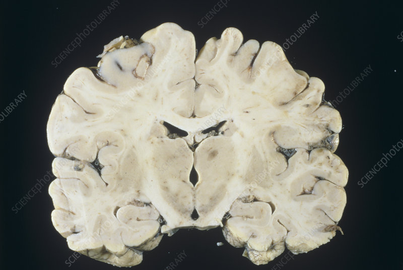 Oedema in the brain