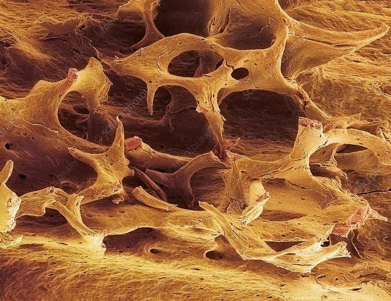 Osteoporotic spongy bone, SEM