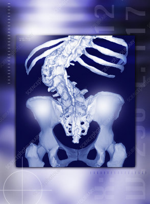 Osteoporosis of the spine, CT scan
