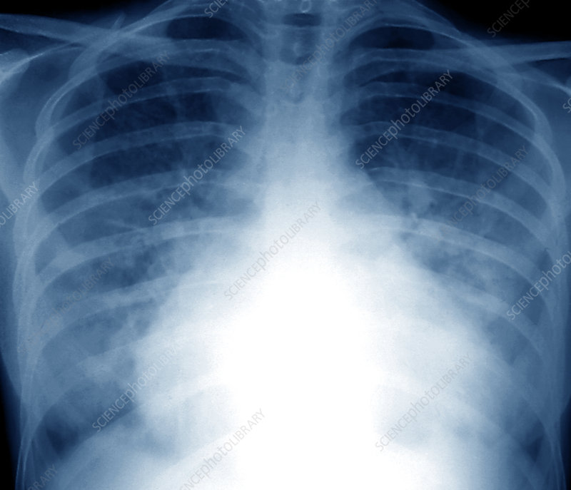 Flash pulmonary oedema, X-ray