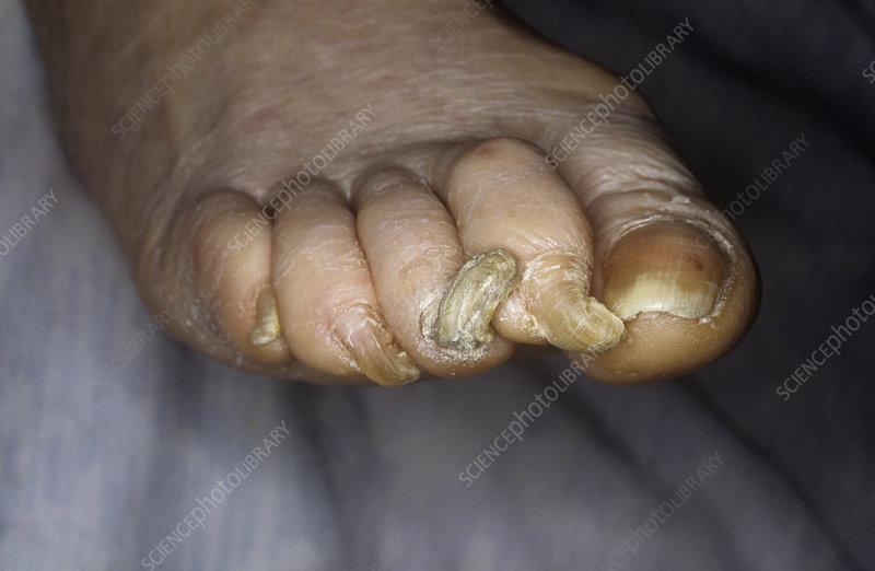Deformed toenails