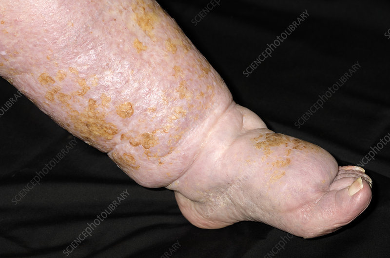 Oedema and cellulitis