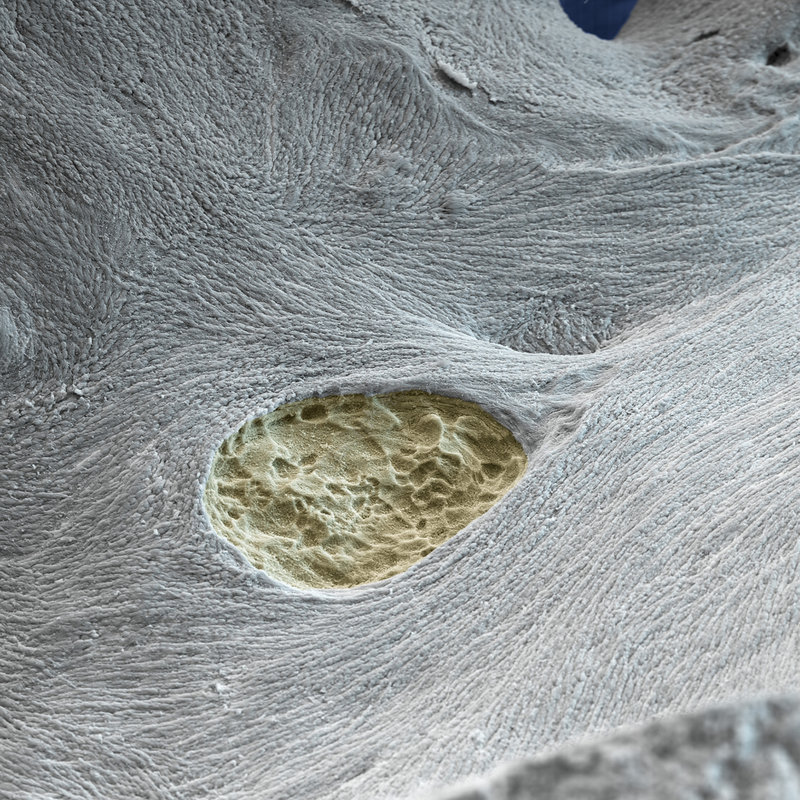 Osteoporosis, SEM