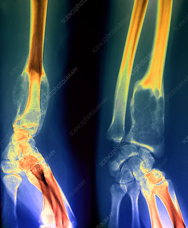Benign bone tumour, X-ray