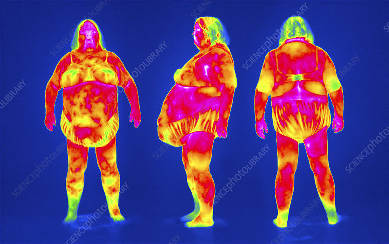 Obese woman, thermogram