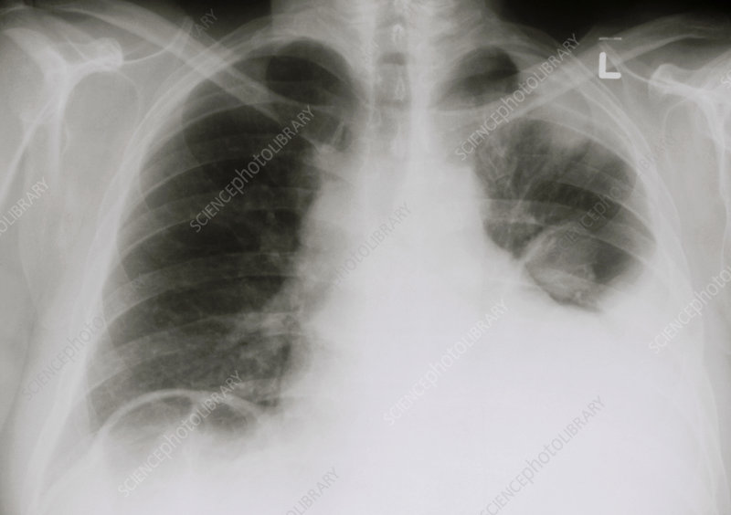 Chest X-ray showing pleural effusion