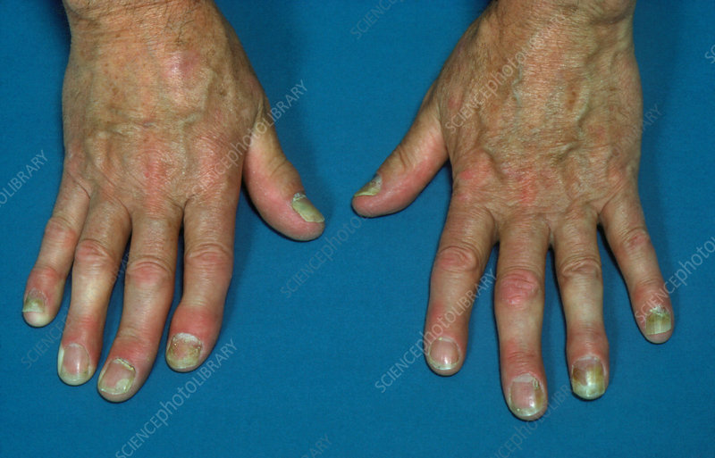 Psoriasis affecting the fingers
