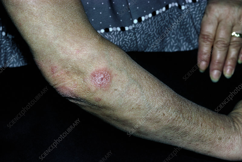 Psoriasis affecting woman's upper arm