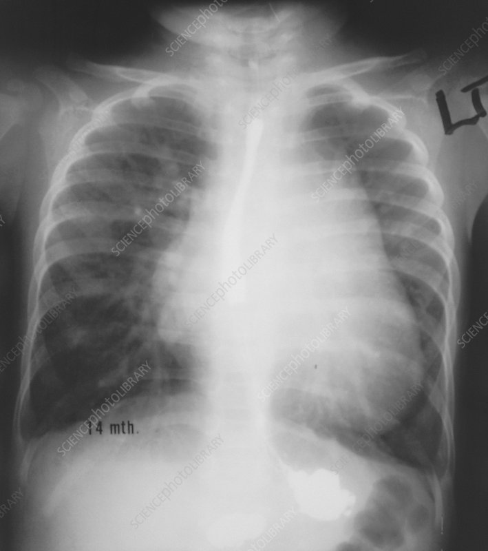 Chest X-ray showing pulmonary plethora