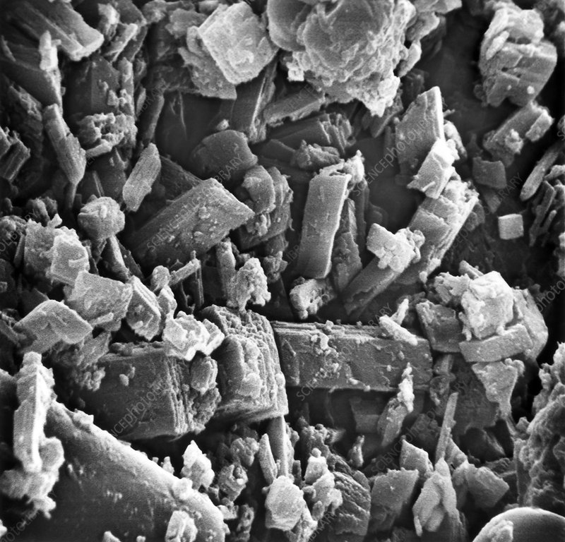 Pseudogout showing calcium phosphate crystals