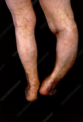 Severe deformity of leg caused by pagets disease