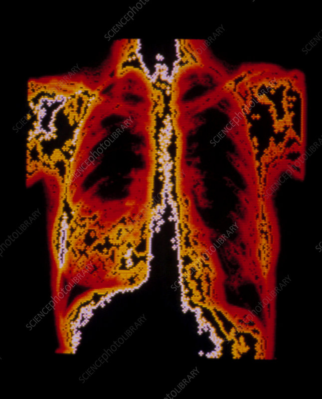 Chest x-ray showing lobar pneumonia