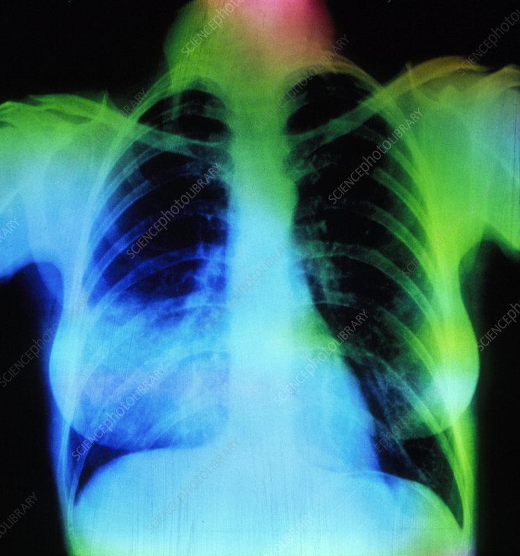 Coloured X-ray showing lobar pneumonia