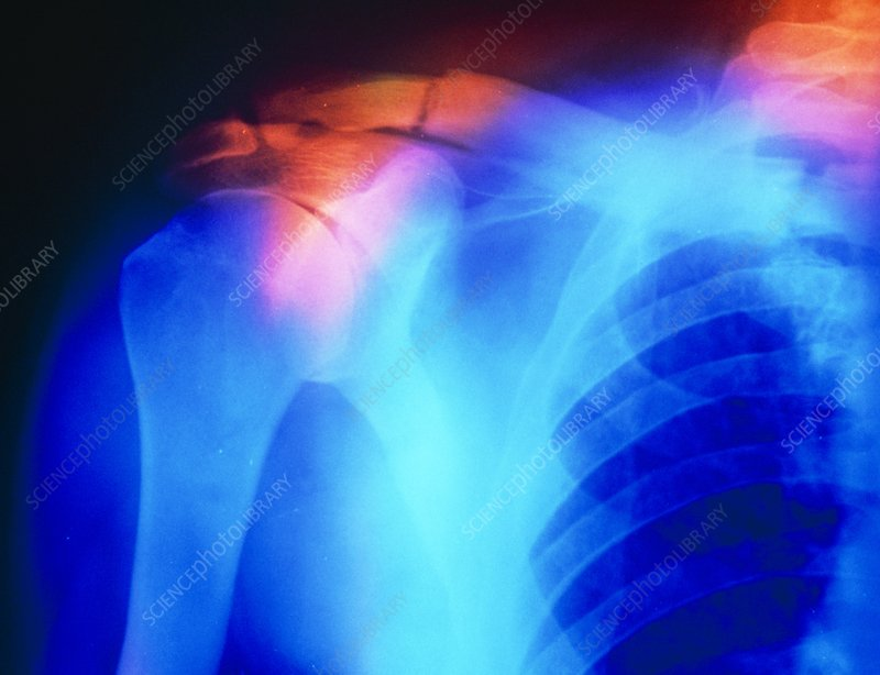 X-ray showing fractured clavicle (paget's disease)